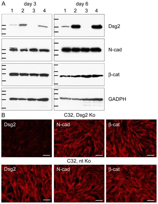 Desmoglein 2 Antibody