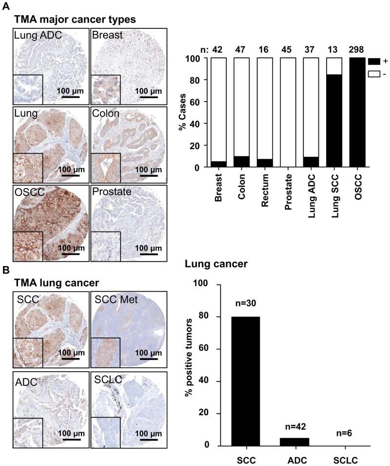 Desmoglein 3 Antibody