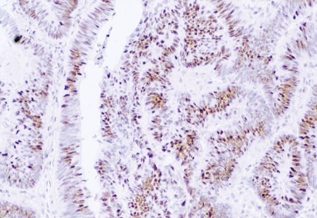 MSH2 Antibody in Immunohistochemistry (IHC)