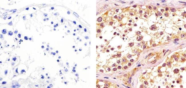 CDK1 Antibody in Immunohistochemistry (Paraffin) (IHC (P))