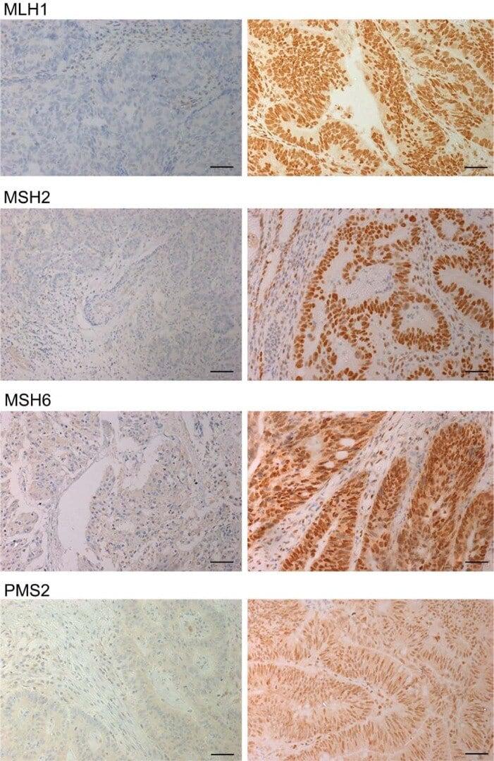 MSH2 Antibody
