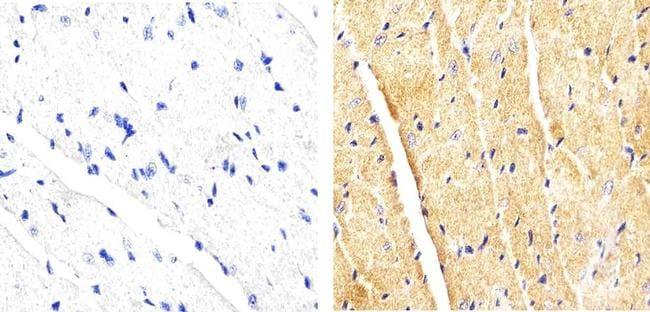 p38 MAPK beta Antibody in Immunohistochemistry (Paraffin) (IHC (P))