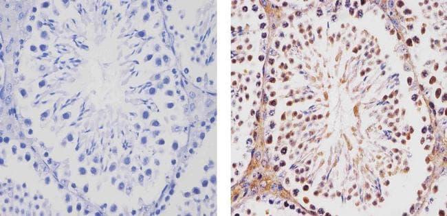 TBX1 Antibody in Immunohistochemistry (Paraffin) (IHC (P))