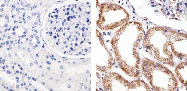 Claudin 5 Antibody in Immunohistochemistry (Paraffin) (IHC (P))