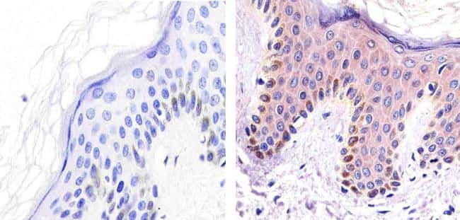 ALK Antibody in Immunohistochemistry (Paraffin) (IHC (P))