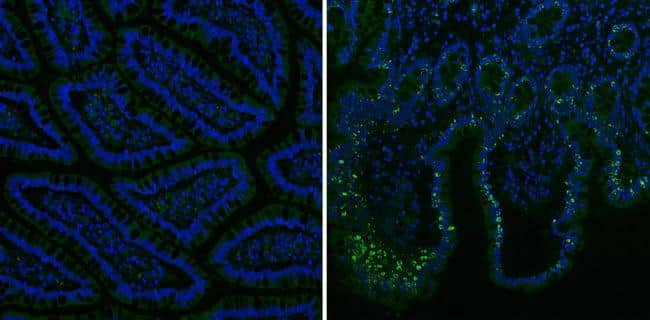Mouse IgG (H+L) Secondary Antibody in Immunohistochemistry (Paraffin) (IHC (P))