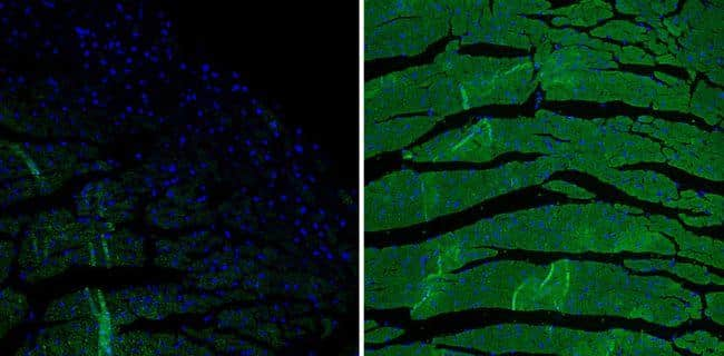 Mouse IgG (H+L) Secondary Antibody in Immunofluorescence (IF)