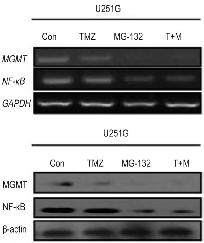 MGMT Antibody