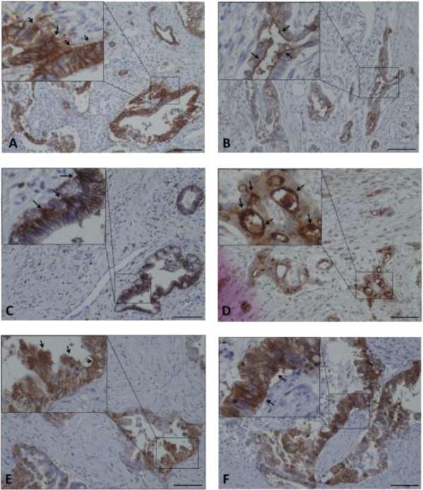 CXCR4 Antibody