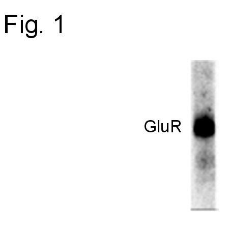Phospho-GluR1 (Ser845) Antibody in Western Blot (WB)