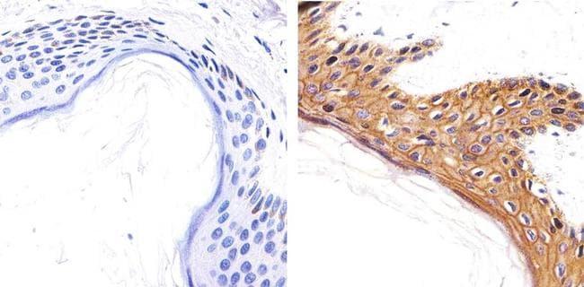 CD138 Antibody in Immunohistochemistry (Paraffin) (IHC (P))