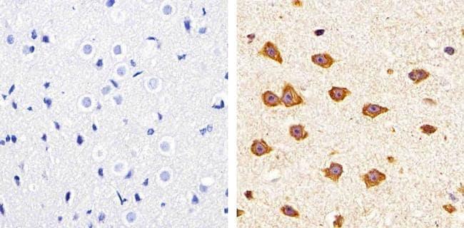 Claudin 11 Antibody in Immunohistochemistry (Paraffin) (IHC (P))