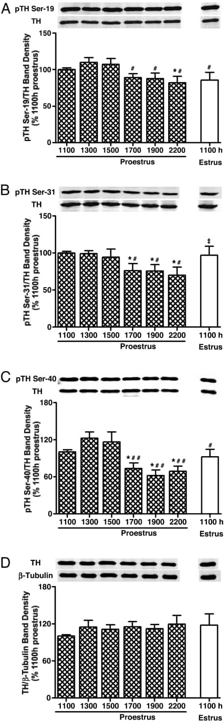 Phospho-Tyrosine Hydroxylase (Ser40) Antibody
