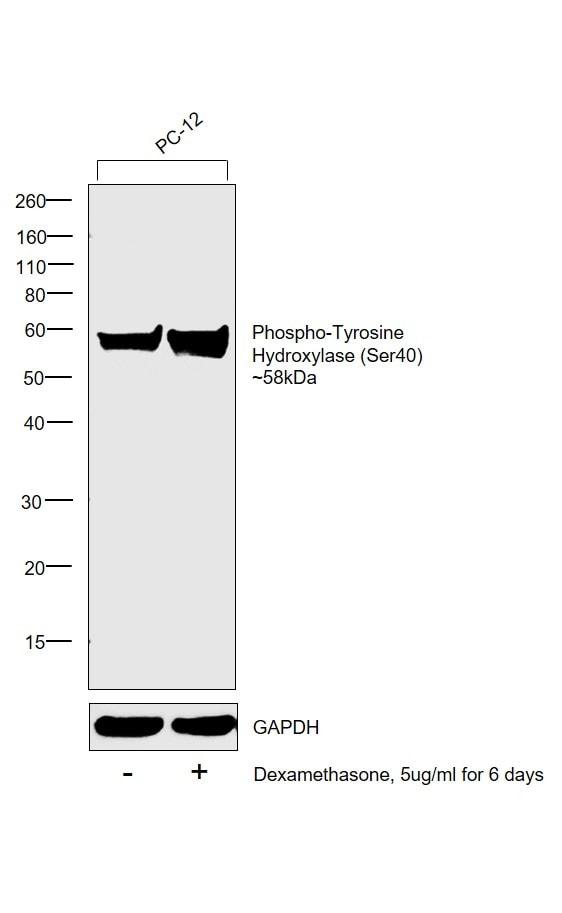Phospho-Tyrosine Hydroxylase (Ser40) Antibody in Western Blot (WB)