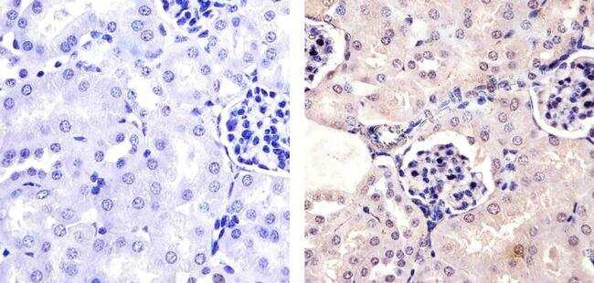 Phospho-PAX2 (Ser393) Antibody in Immunohistochemistry (Paraffin) (IHC (P))