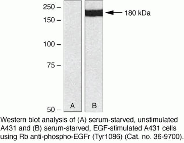 Phospho-EGFR (Tyr1086) Antibody in Western Blot (WB)