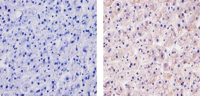 TSC2 Antibody in Immunohistochemistry (Paraffin) (IHC (P))