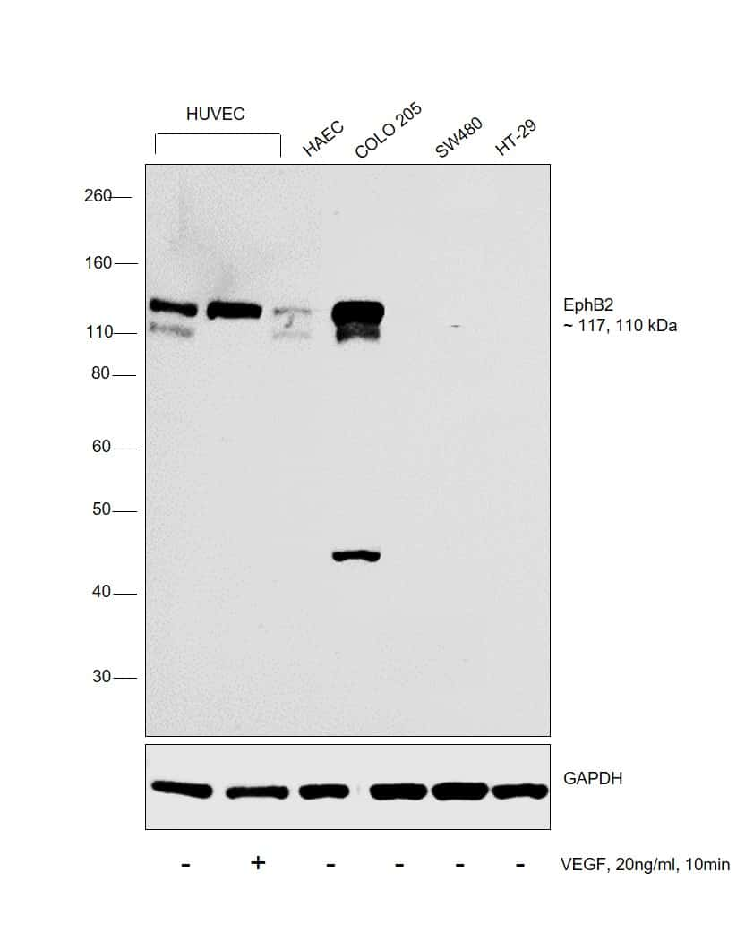 EphB2 Antibody in Cell treatment