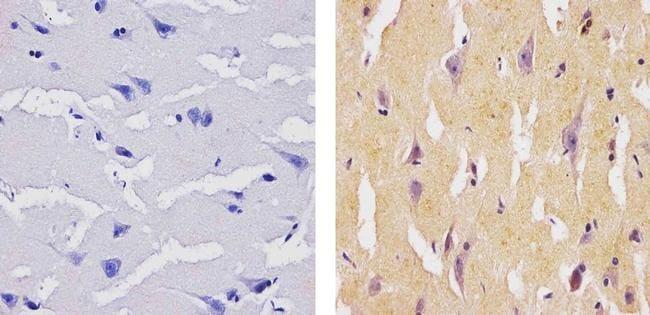 SOCS1 Antibody in Immunohistochemistry (Paraffin) (IHC (P))