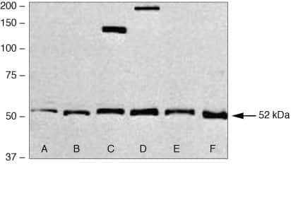 SMAD1 Antibody in Western Blot (WB)