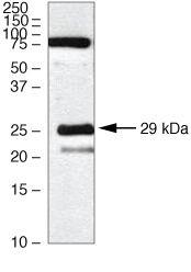 Claudin 18 Antibody in Western Blot (WB)