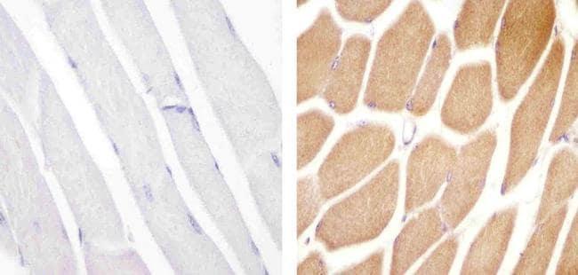 VPS34 Antibody in Immunohistochemistry (Paraffin) (IHC (P))