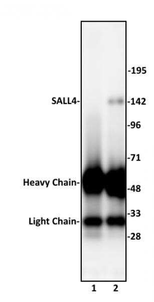 SALL4 Antibody in Immunoprecipitation (IP)