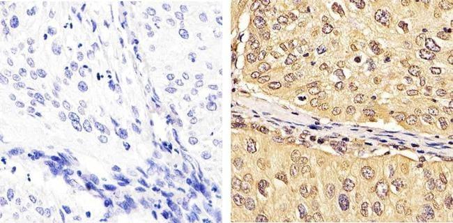 FBXW7 Antibody in Immunohistochemistry (Paraffin) (IHC (P))