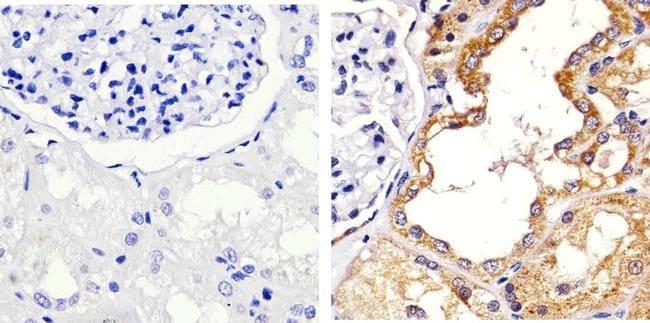 Occludin Antibody in Immunohistochemistry (Paraffin) (IHC (P))