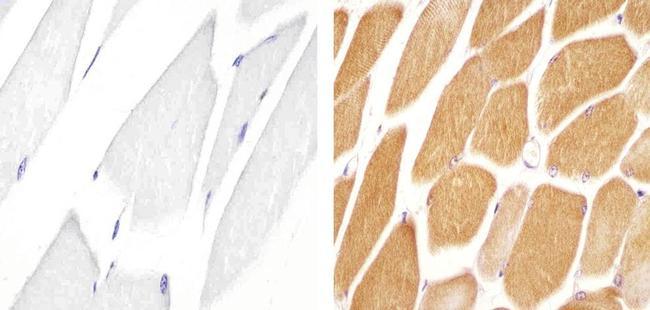 JPH1 Antibody in Immunohistochemistry (Paraffin) (IHC (P))