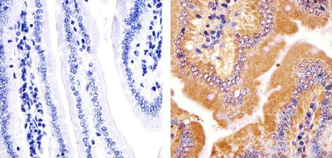 JPH2 Antibody in Immunohistochemistry (Paraffin) (IHC (P))