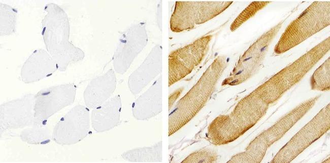 Metadherin Antibody in Immunohistochemistry (Paraffin) (IHC (P))