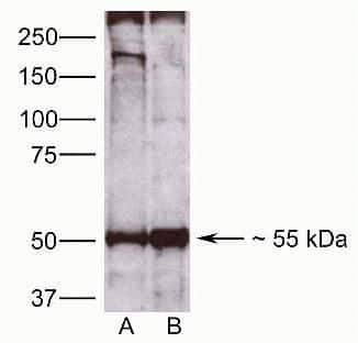 CDw293 Antibody in Western Blot (WB)