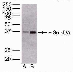 ANGPTL4 Antibody in Western Blot (WB)