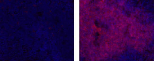 CD4 Antibody in Immunohistochemistry (Frozen) (IHC (F))