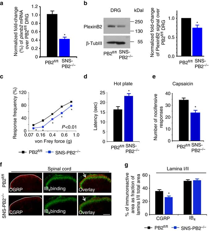 PLXNB2 Antibody