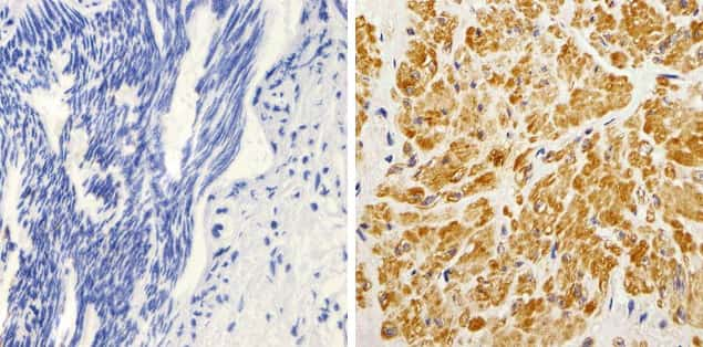 K-Ras Antibody in Immunohistochemistry (Paraffin) (IHC (P))