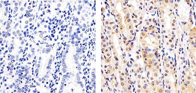 SMAD7 Antibody in Immunohistochemistry (Paraffin) (IHC (P))