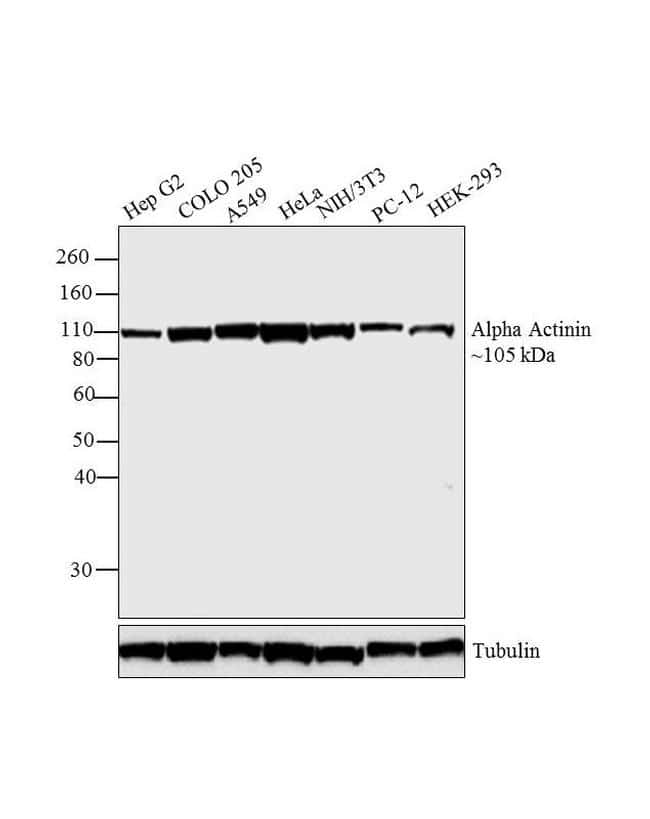 alpha Actinin 4 Antibody in Western Blot (WB)