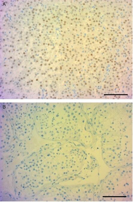 NR5A1 Antibody