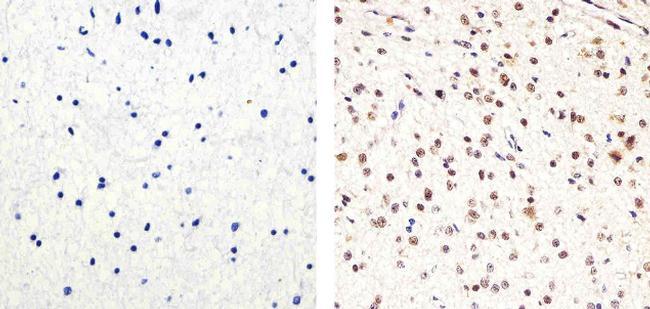 PARP Antibody in Immunohistochemistry (Paraffin) (IHC (P))