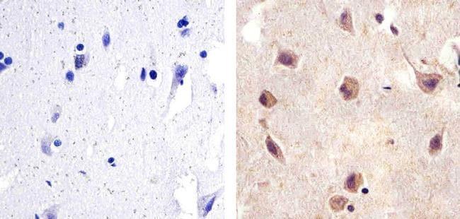 SMAD2 Antibody in Immunohistochemistry (Paraffin) (IHC (P))