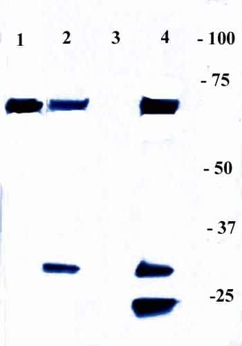 NFkB p65 Antibody in Immunoprecipitation (IP)