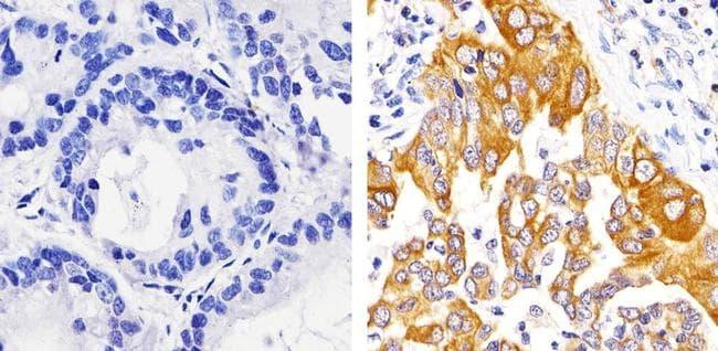 Caspase 3 Antibody in Immunohistochemistry (Paraffin) (IHC (P))