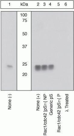 Phospho-RAC1/CDC42 (Ser71) Antibody in Western Blot (WB)