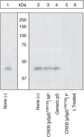 Phospho-CREB (Ser129, Ser133) Antibody in Cell treatment