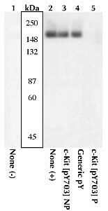 Phospho-c-Kit (Tyr568, Tyr570) Antibody in Western Blot (WB)