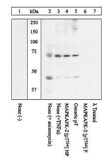 Phospho-MAPKAPK2 (Thr334) Antibody in Cell Treatment