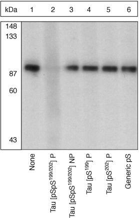 Phospho-Tau (Ser199, Ser202) Antibody in Peptide Array