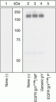 Phospho-EGFR (Tyr1148) Antibody